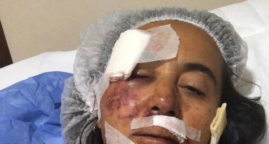 Tucumán inseguro: la golpearon brutalmente y, en la comisaría, no le tomaron la denuncia