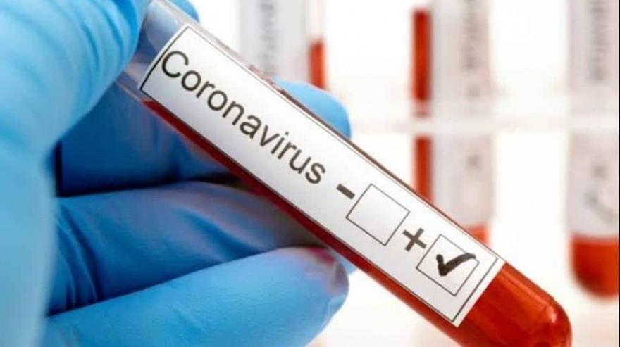 Salud informó tres muertes y 311 casos de Covid-19